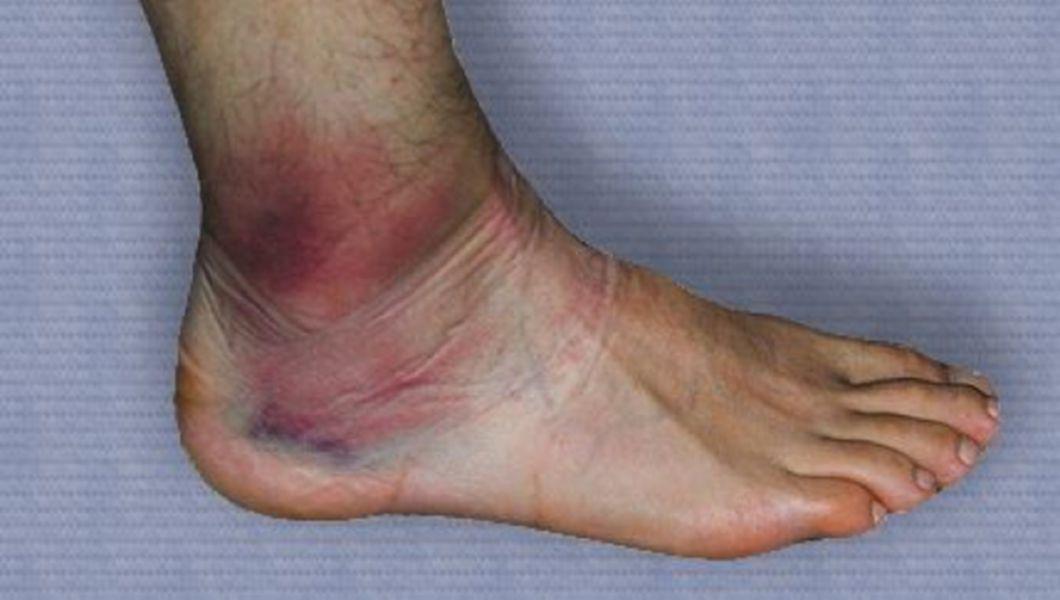 deteriorarea consecințelor ligamentelor gleznei umăr de calmare a durerii articulare
