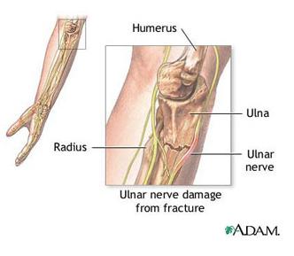 deteriorarea pungii articulației cotului