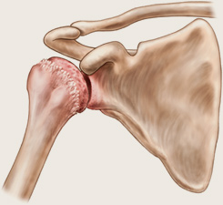 diferența de artrită față de artroza articulației umărului