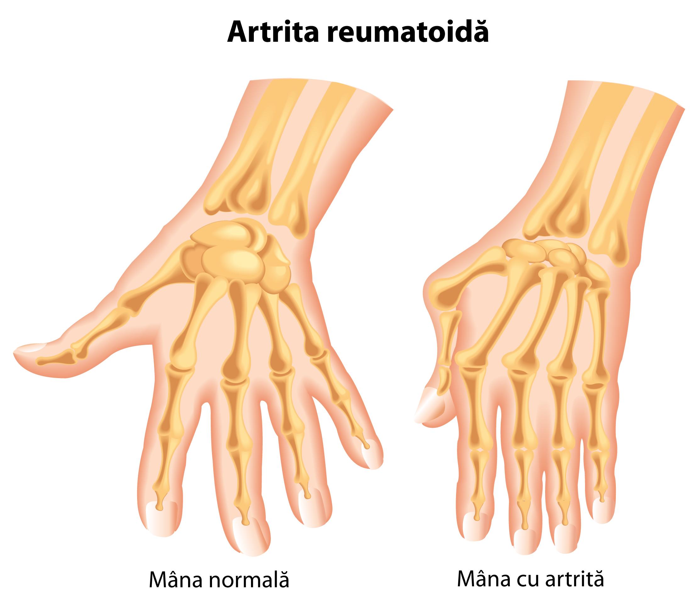durere articulară deformarea degetului