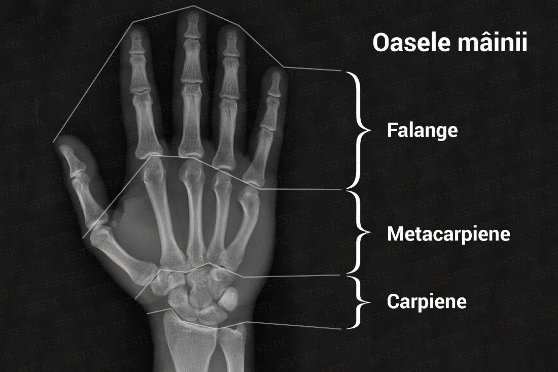 durere de fractură la încheietura mâinii aparat pentru durerea articulației genunchiului
