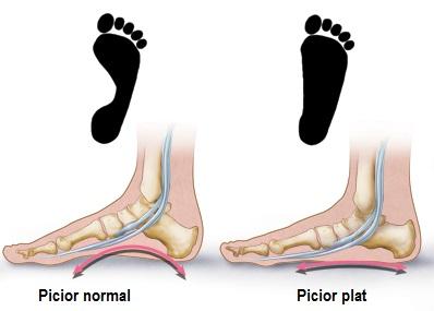 Partea inferioara a piciorului si durerea gleznei, asculta-ti corpul...