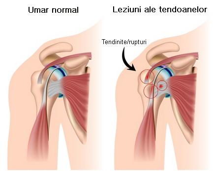durere în articulația superioară a brațului