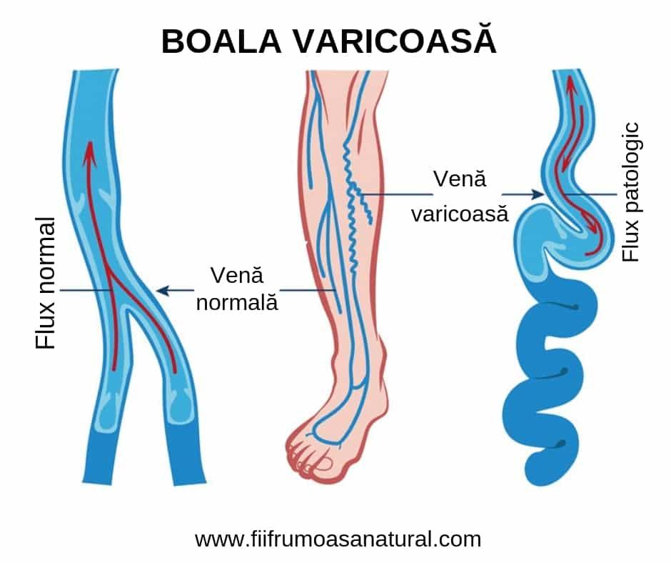 vasele varicoase asupra durerii caracterului picioarelor varicoză de peivky