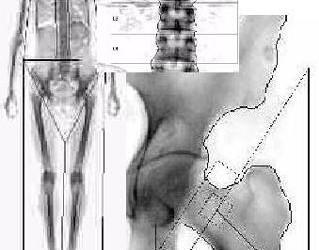 ramă-calcaneo-naviculară a bolii artroza articulației umărului 1-2 grade