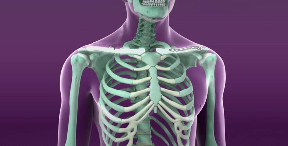 balsam muscular și articular tratamentul artrozei de gradul al treilea