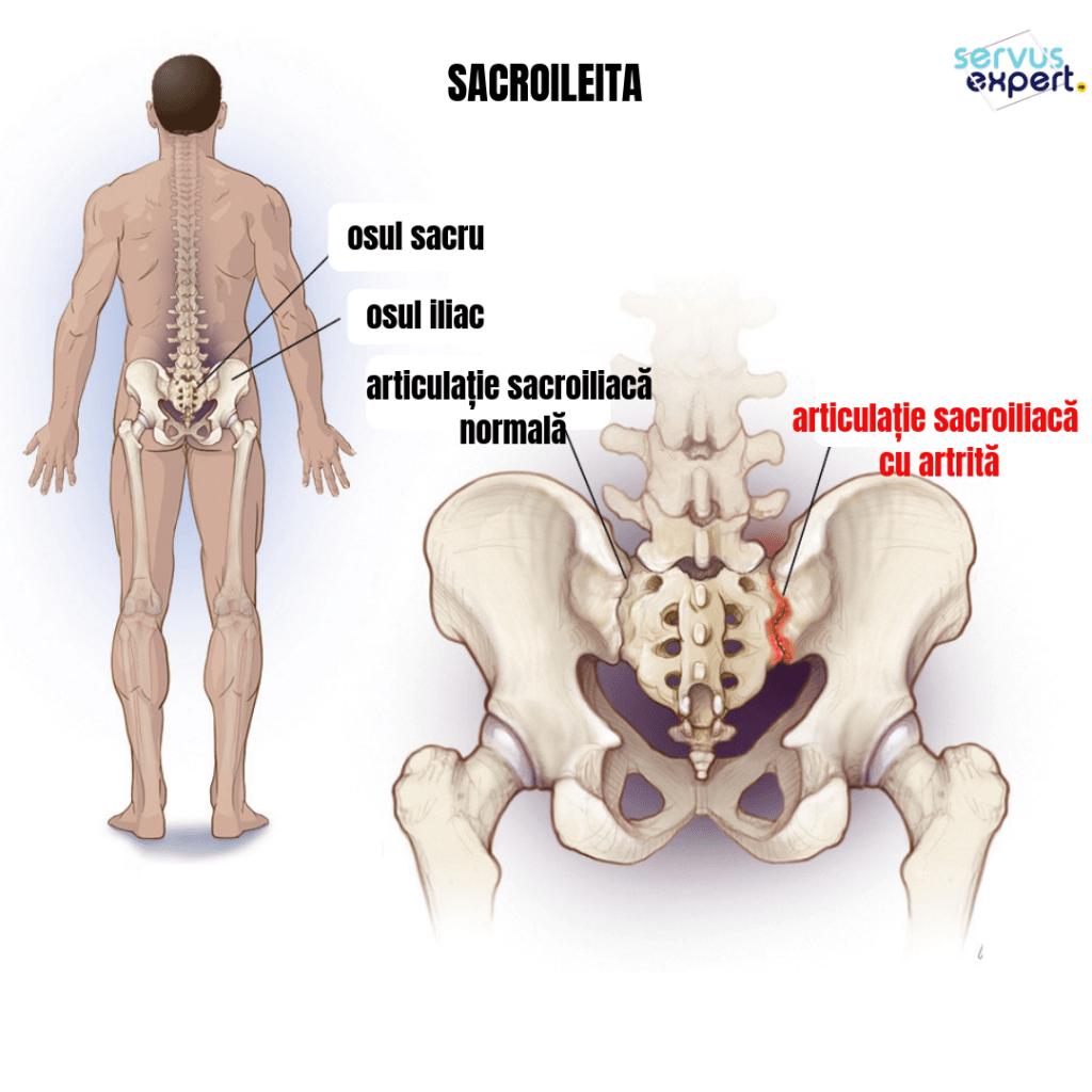 dureri la nivelul articulației sacroiliace artrita simptomelor articulației genunchiului și unguent de tratament