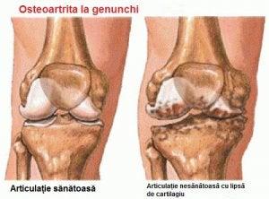 durere în articulația încheieturii în timpul exercițiului