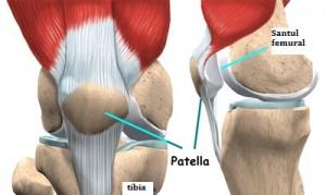 cum se tratează condromalacia genunchiului