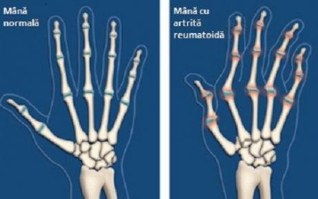 Infectarea Artritei