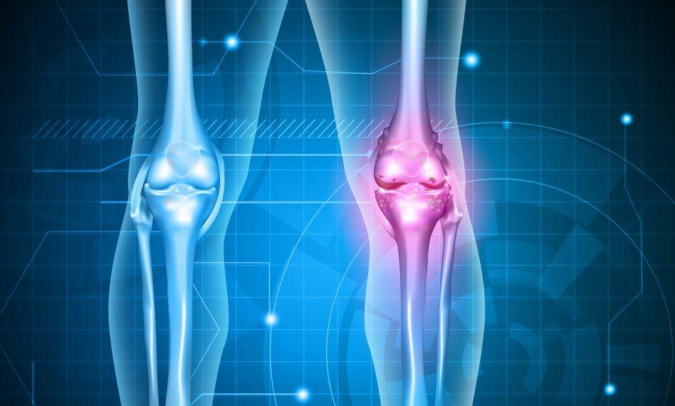 artroza metodei de tratament a articulațiilor genunchiului