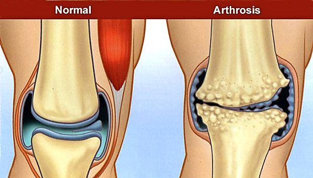 tratamentul artrozei cu hipertensiune arterială