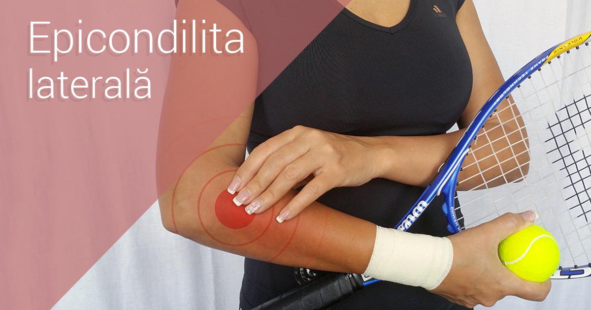 epicondilita simptomelor și tratamentului articulației cotului