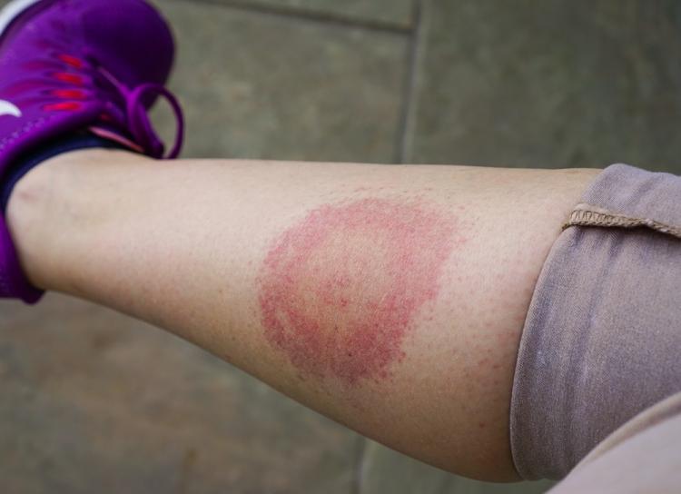 Totul despre guta (artrita gutoasa): Simptome, Factori de risc & Tratament | championsforlife.ro