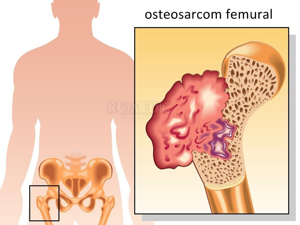 mâncărimi ale genunchilor artroza șoldului articulațiilor
