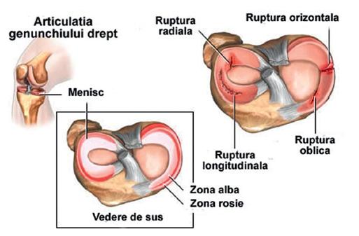 dureri de umăr gimnastică medicală