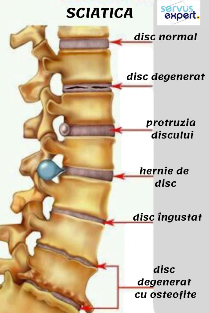articulațiile doare coloana vertebrală
