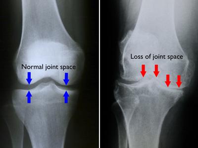 radiografia artritei genunchiului refacerea mobilității articulației degetului după o fractură