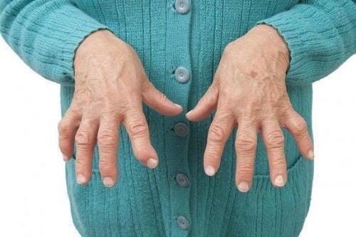 tratamentul umflat al articulațiilor artrita artroza articulara cum se trateaza