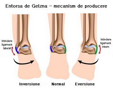 ligament dureros la gleznă tratamentul degetelor de la artrita reumatoidă
