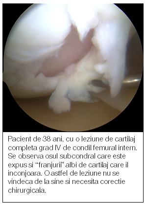 durere la nivelul genunchiului lichid în articulație