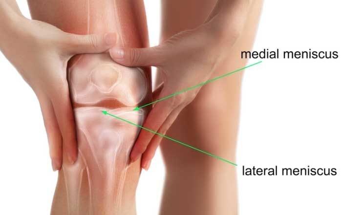meniscus genunchi Pret