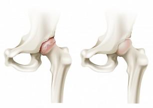 inflamația încheieturii după fractură antibiotice pentru dureri articulare și musculare
