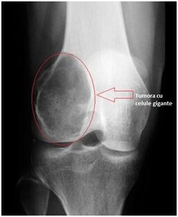 tratarea îmbinărilor cu cupru semne ale artrozei fațetelor
