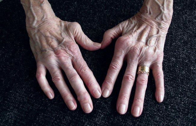 simptomele periei bolii articulare ale mâinii artrita edemului articulației cotului
