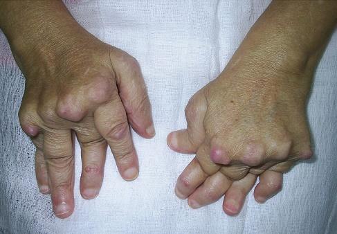 Poliartrita Reumatoida: Simptome • Poze • Analize • Tratament - championsforlife.ro