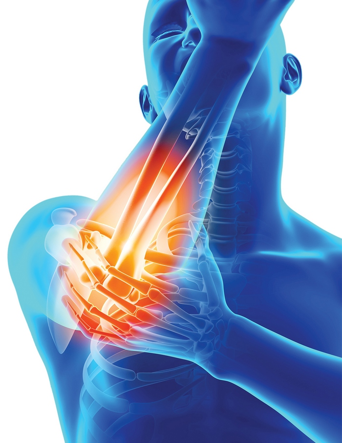 Prim ajutor pentru dureri la nivelul articulațiilor mâinilor