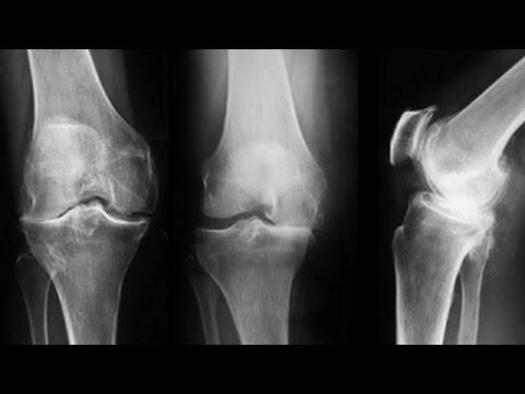 radiografia artritei genunchiului subluxarea tratamentului conservator al gleznei
