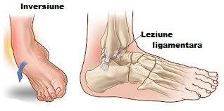 ruperea ligamentelor articulației gleznei artroză tratament artrite mâini