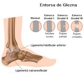 Ruperea tratamentului unguent al ligamentelor de gleznă