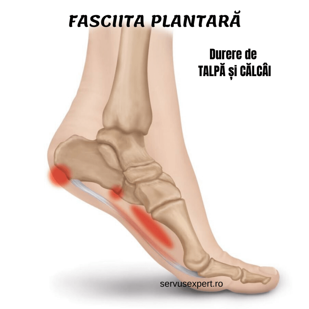 simptome de inflamație a călcâiului dureri articulare din allapinină