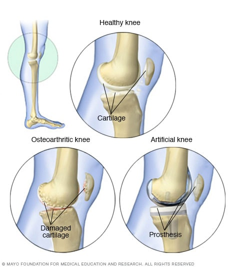 Osteoscleroza osoasă: simptome, cauze și tratament al bolii