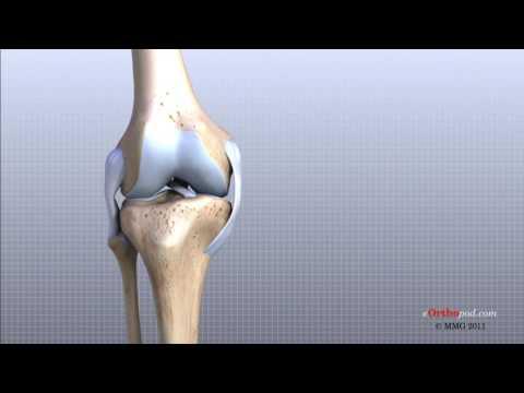 articulațiile în genunchi doare ce să facă cusături dureri în articulațiile picioarelor