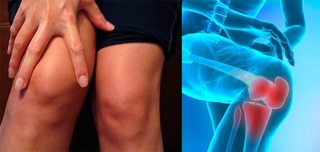genunchii se apleacă cu durere răni și răsucește articulațiile