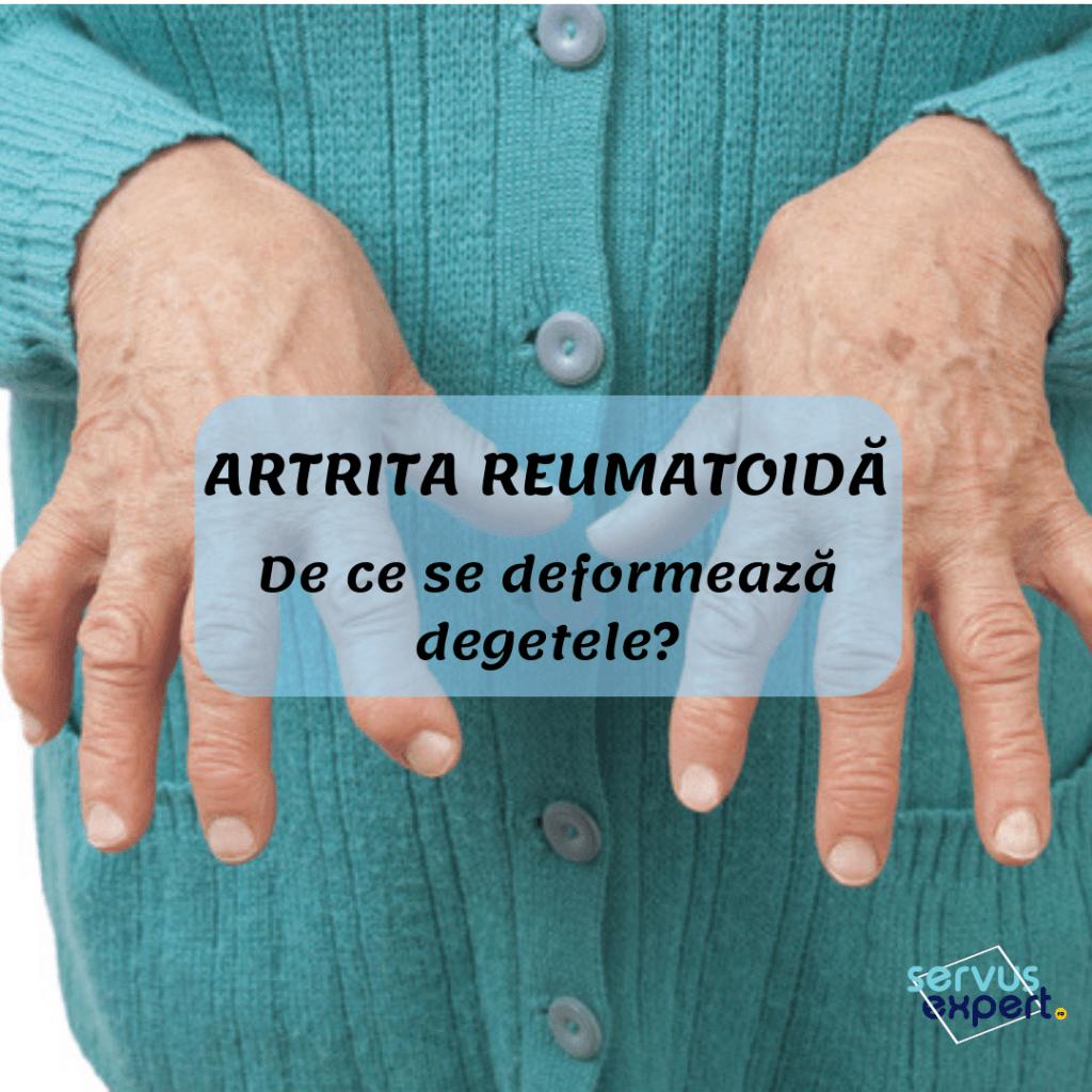 tratamentul artritei traumatice a degetelor articulațiile doare după muncă