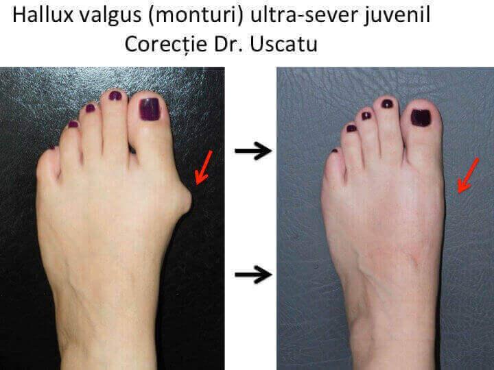 tratamentul artrozei de 1 deget de la picior