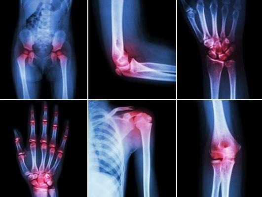 Tratament la artroza la Marea Moartă