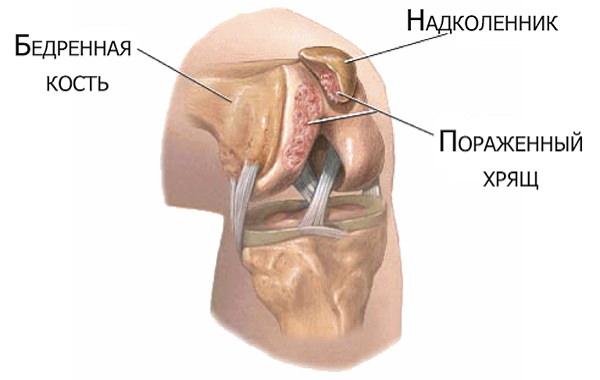 osteochondroza juvenilă a articulației șoldului