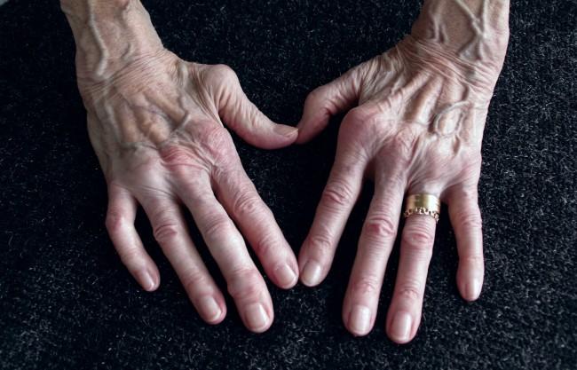 crize și durere în articulații și oase dureri articulare 20 de ani