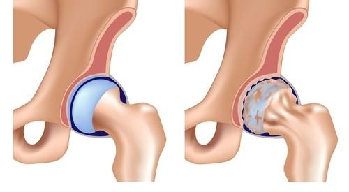 tratamentul durerii în articulația șoldului din dreapta