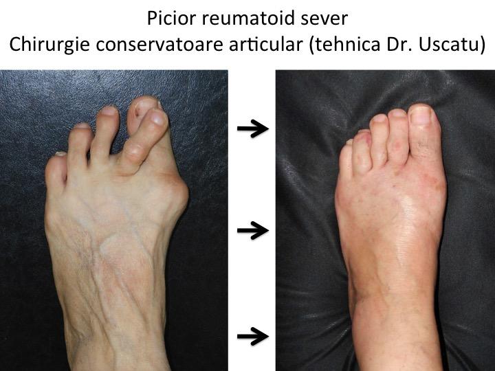 Tratamentul edemului picioarelor din artroză