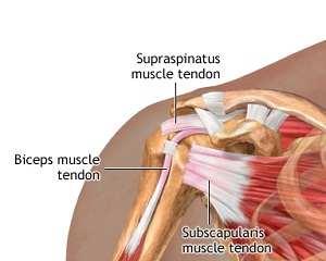Tratamentul inflamației tendoanelor la umăr