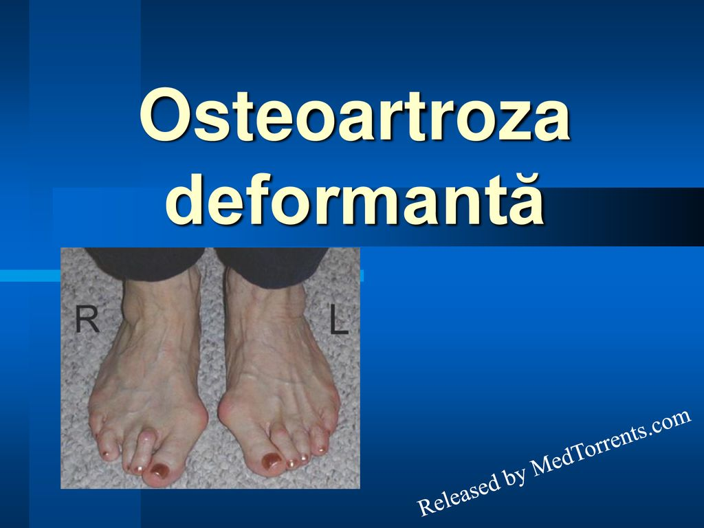 Tratamentul osteoartrozei deformante a articulației gleznei - championsforlife.ro