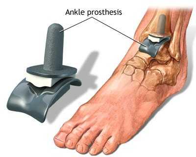 unde să tratezi articulația gleznei