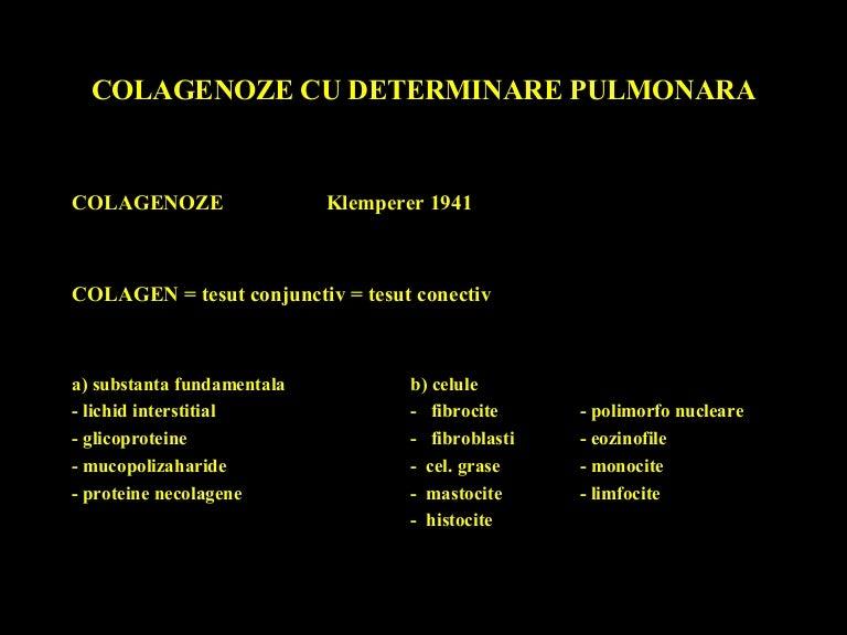 Vasculită sistemică boală a țesutului conjunctiv,