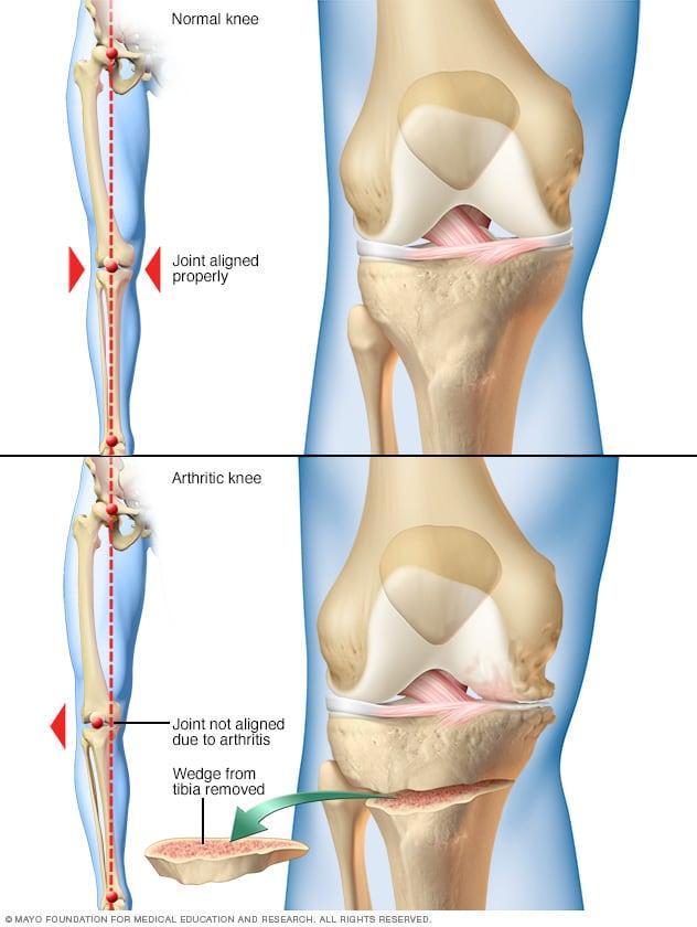 tratament de osteoscleroză articulară